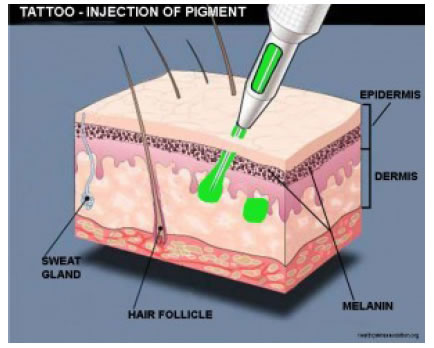 tattoo-pigment-injected-into-dermis